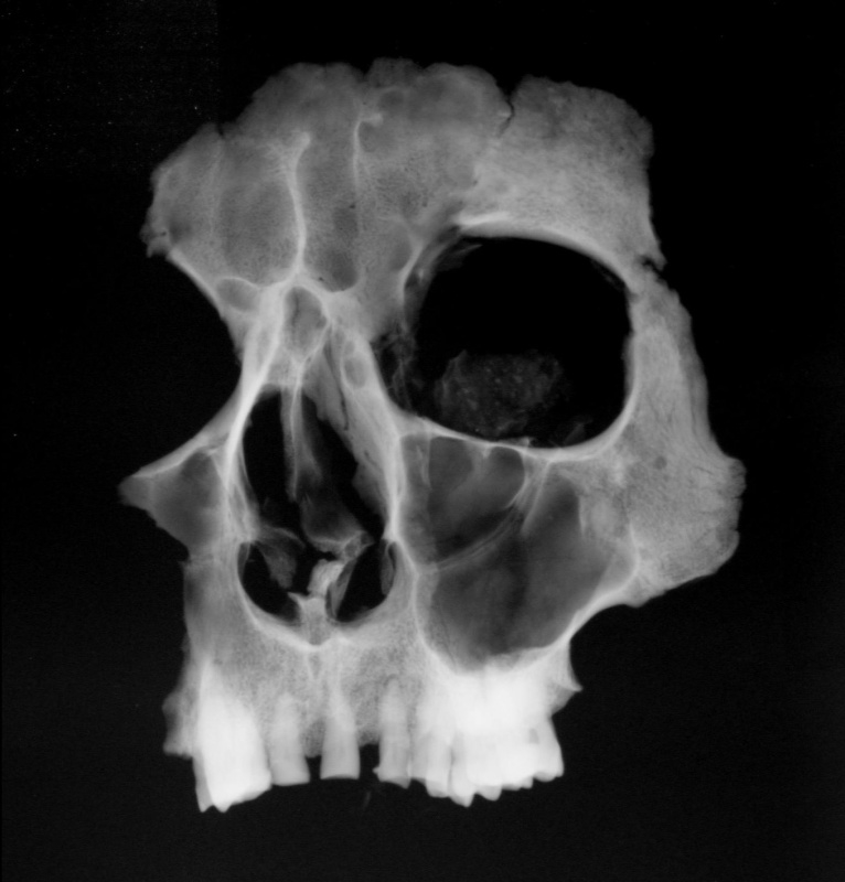 X-ray picture of maintained facial part of Tycho Brahe (photography:National Museum archive)